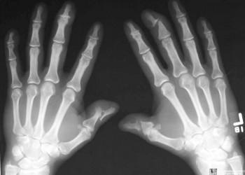 artrita medicației la șold