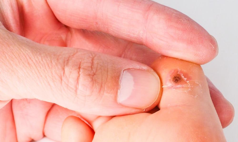 tratamentul cu șoldul cochar vara flacciditatea durerii articulare