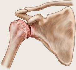 artroza a 2-a etapă a articulației umărului unguent articular dureri de genunchi