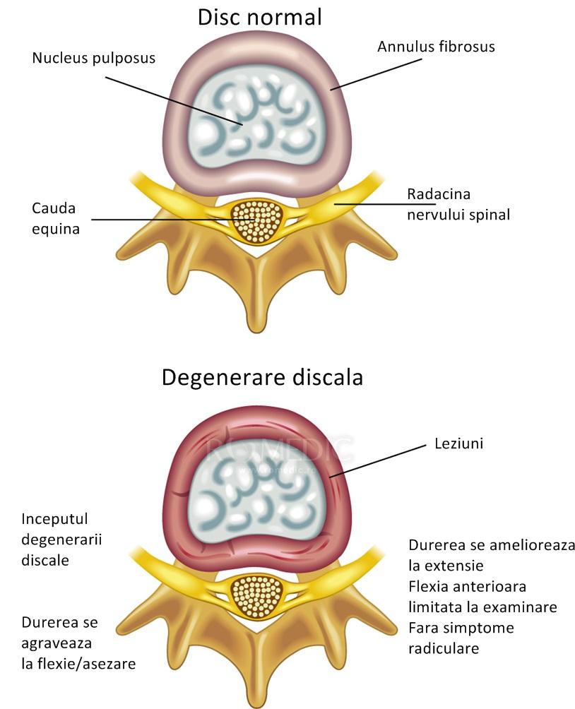 boli degenerative ale coloanei vertebrale și articulațiilor comprese pentru durere în articulații și mușchi