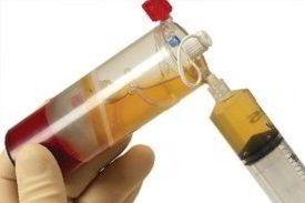 plasma sanguină în tratamentul artrozei forum pentru tratamentul artrozei mâinilor
