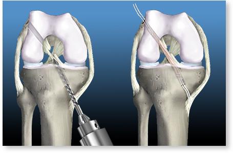cum se tratează ligamentele de umăr unguent pentru boli ale articulațiilor mâinilor