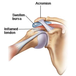 bursita tratamentului subclavicular al articulației umărului