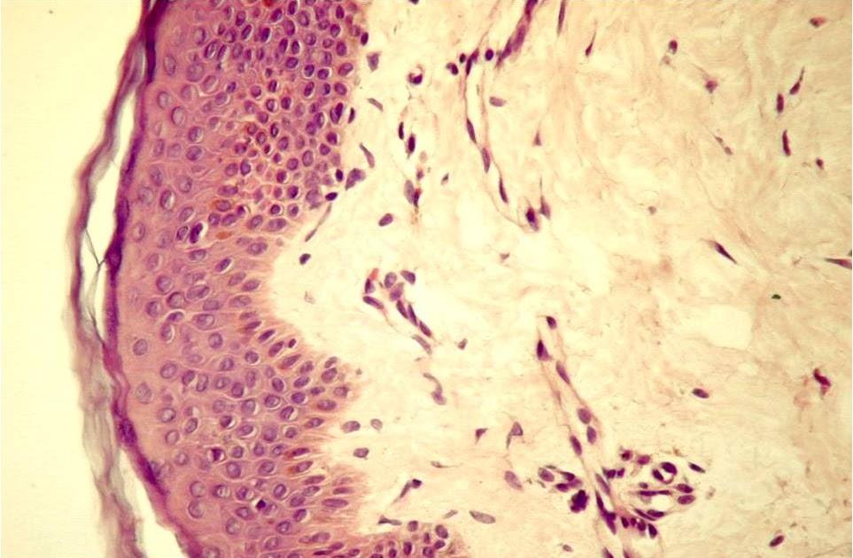 medicament dens de țesut conjunctiv fibros