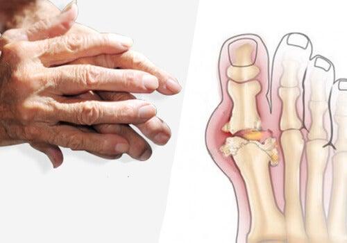 tratament pentru artroză și gută