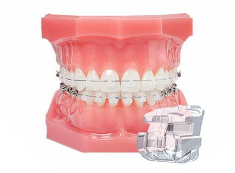 recenzii ale aparatului bucal dentar pentru tratamentul articular