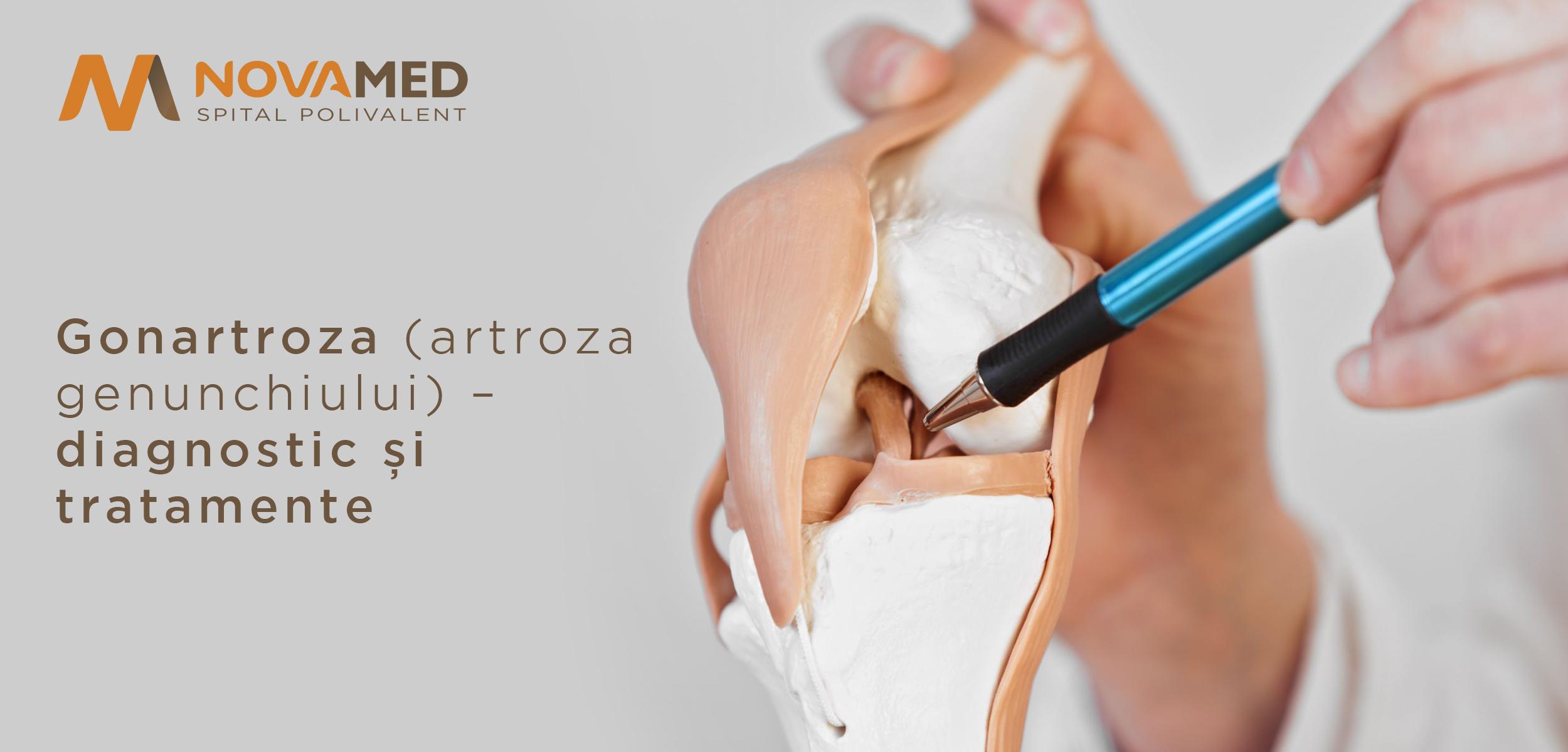 modificări ale articulației genunchiului cu artroză