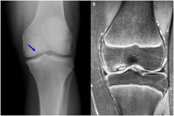 Tratamentul cu artroza genunchiului cu fermatron