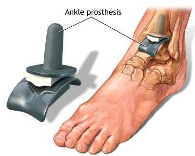 tratament eficient pentru artroza gleznei tratament articular cu bulion osos