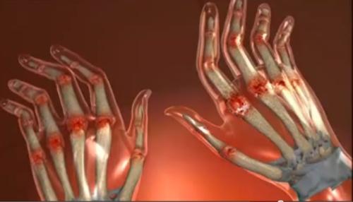boală articulară în mână