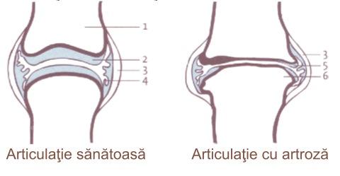durere severă în articulația gleznei, fără răni dureri articulare la femeile mai în vârstă