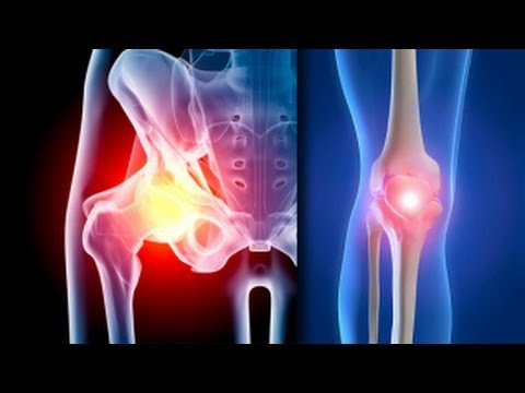 Tratamentul eficient al artrozei și artritei