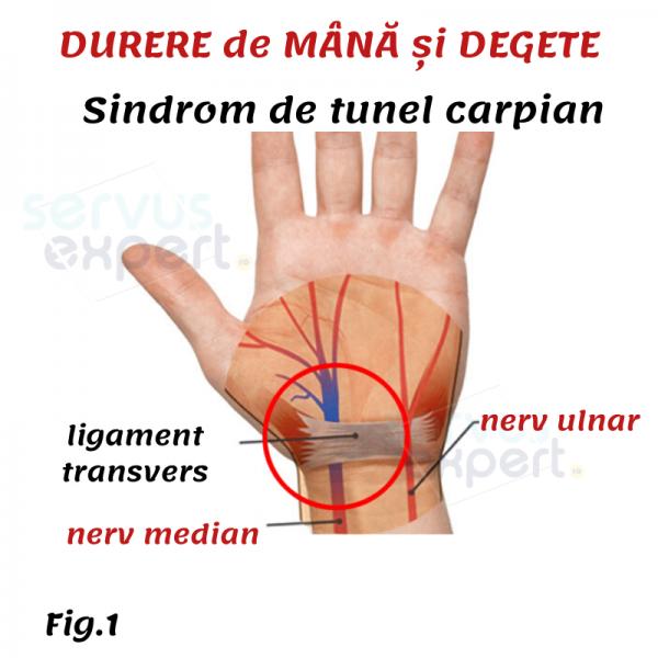 degetele mari doare medicamente moderne pentru artroză