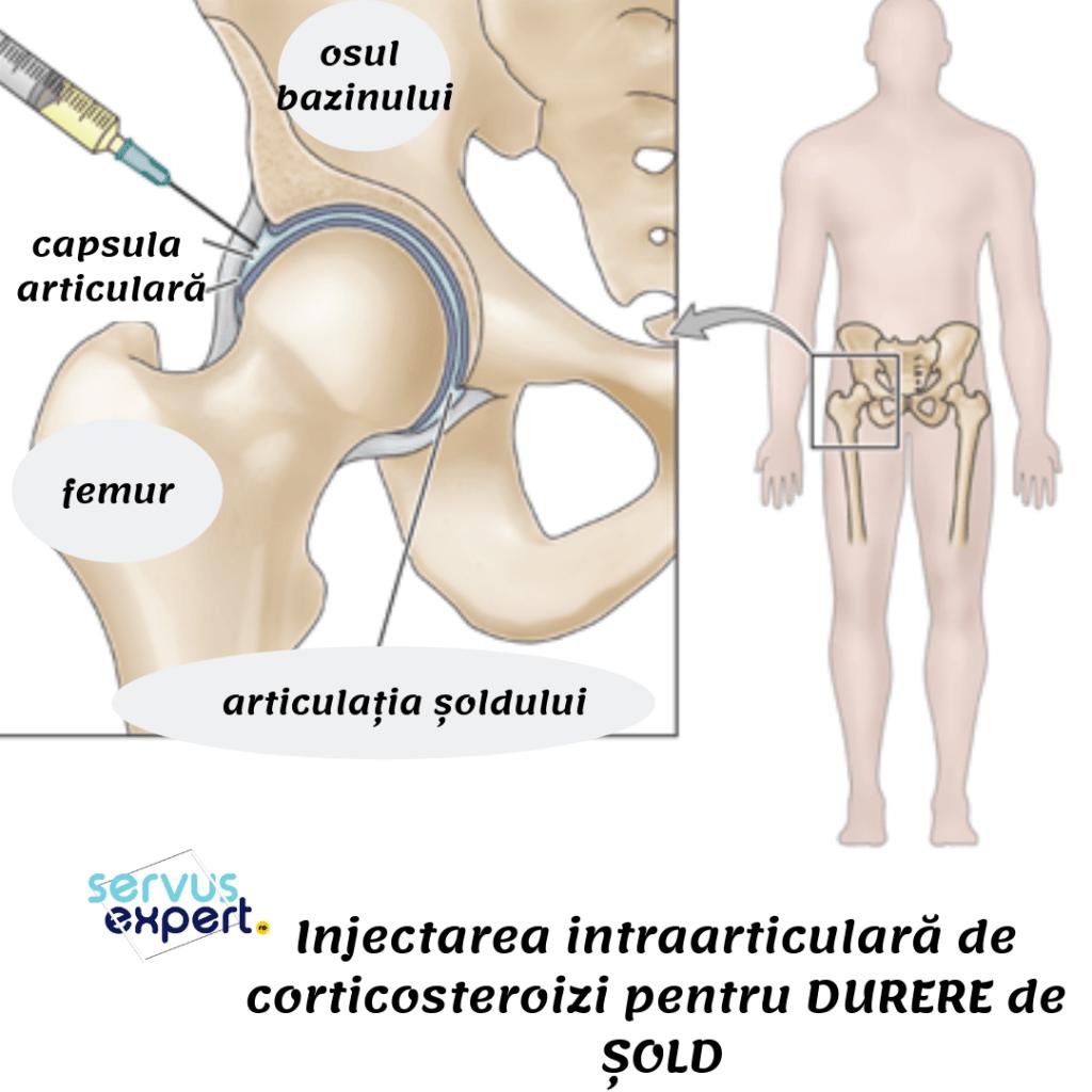 pseudoartroza coastei reduce durerea cu artroza articulației șoldului