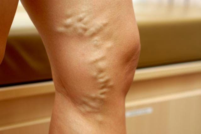 care au dureri articulare severe artroza tratamentului genunchilor la domiciliu
