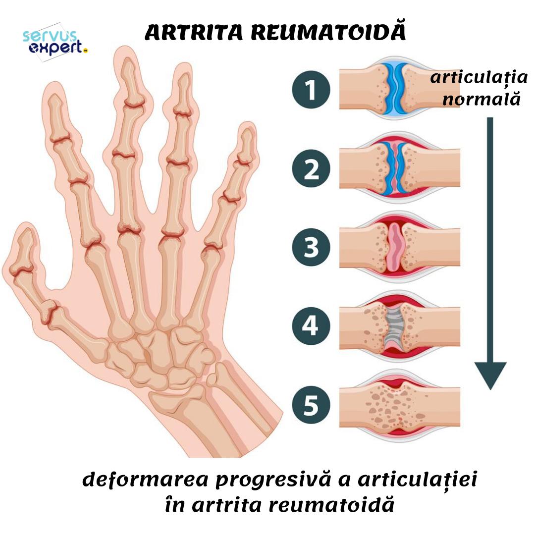 poliartrita reumatoida autoimuna dureri de blocare a umărului