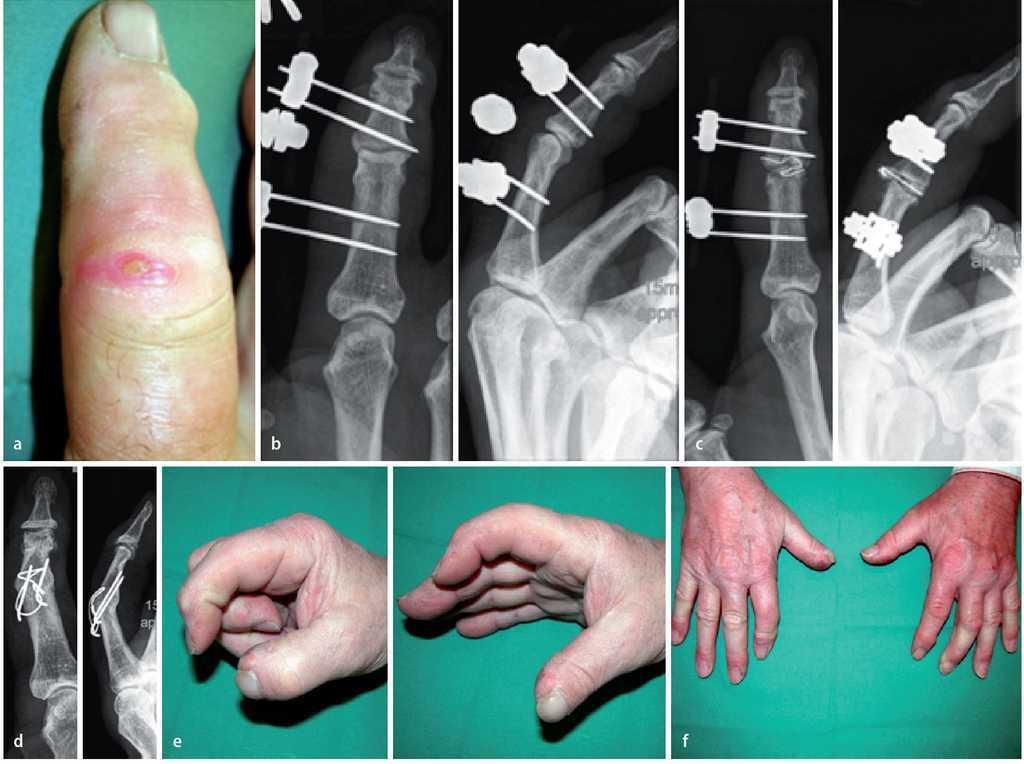 articulațiile picioarelor sunt foarte dureroase decât durerea în articulația mâinii stângi cauzează
