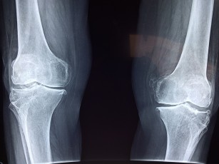 Tratamente pentru artrita genunchiului, generalitati