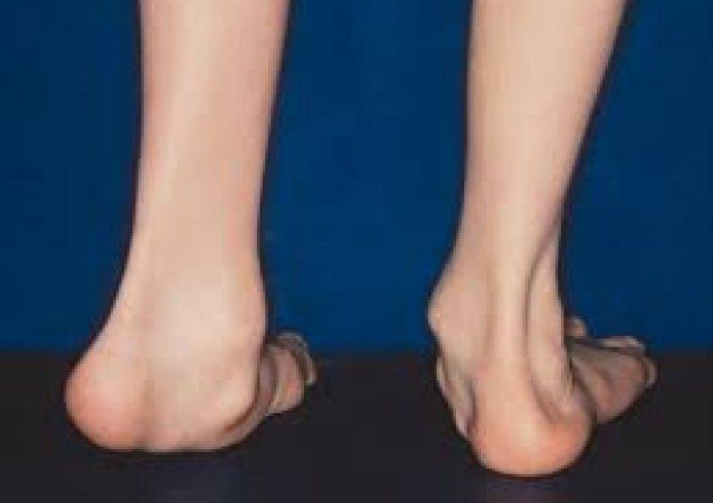 o problemă cu o articulație mare pe picior