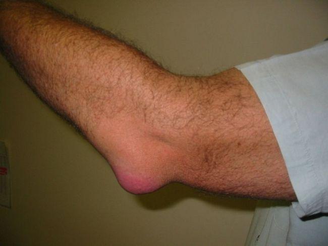 atunci când stoarceți peria, durere în articulația cotului articulațiile picioarelor brațelor gâtului doare