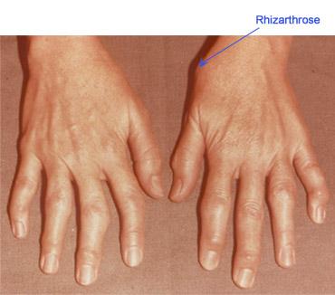 durere bruscă în articulația degetului cum doare articulațiile coloanei vertebrale
