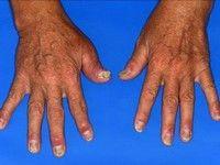 artrita psoriazică a degetelor primele simptome