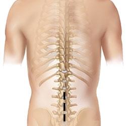 boli degenerative ale coloanei vertebrale și articulațiilor