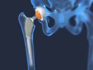 tratamentul coxartrozei deformane ale articulației șoldului