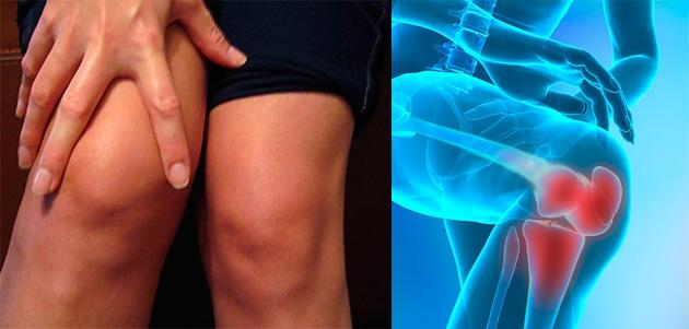 tratamentul artrozei genunchiului cu medicamente hormonale artroza primei articulații metacarpiene carpiene