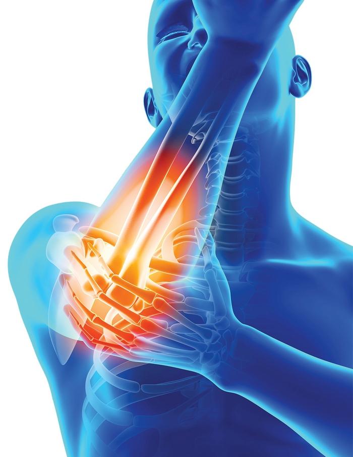 artroza gleznei articulației piciorului