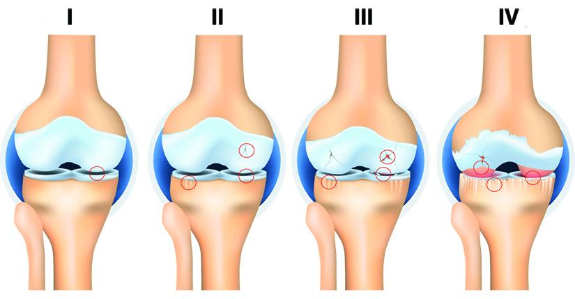 steroizi pentru articulațiile genunchiului