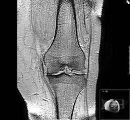 artroza de gradul doi al articulației gleznei