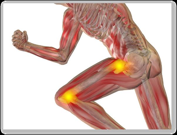 tratamentul cu șoldul cochar vara Tratamentul artrozei de umăr de gradul I