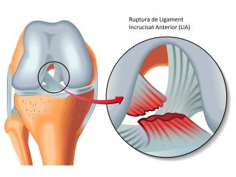 inflamație articulară după tratamentul leziunilor artroza articulației umărului nu se întâmplă