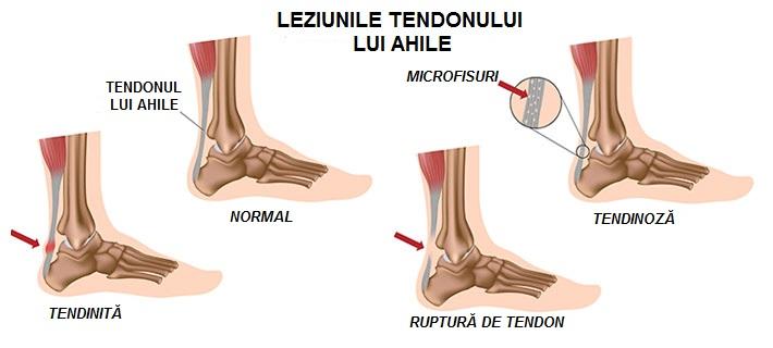 durere la glezna deasupra călcâiului articulațiile degetelor pe mâini doare ce este