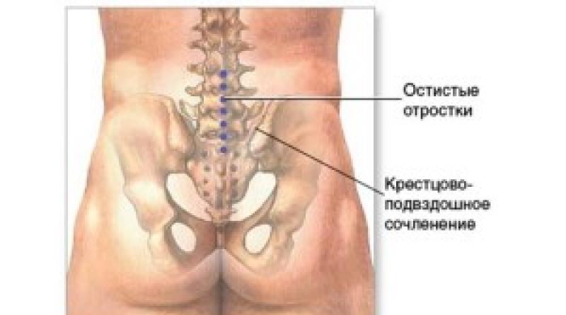 tratamentul artrozei articulației sacroiliace
