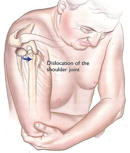 tratament după luxația articulației umărului powerlifting tratamentul articulațiilor