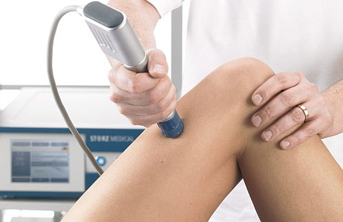 terapia cu unde de șoc în tratamentul artrozei cu unguent inflamator articular