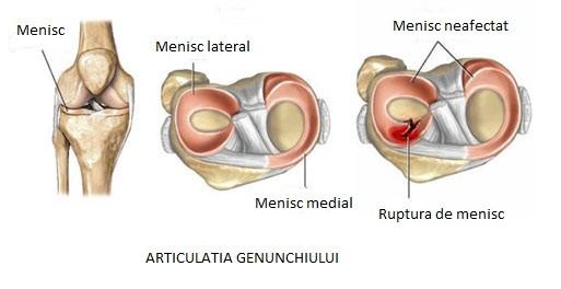 vindeca durerile de genunchi
