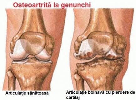 osteoartroza tratament articular