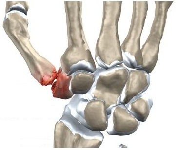 dureri articulare după rănire unguent nou pentru dureri articulare