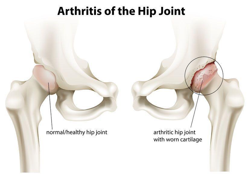 articulațiile doare simptome și tratament care este util pentru artroza genunchiului