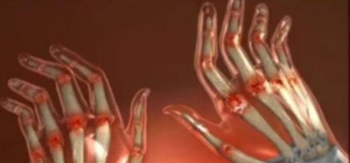 toate articulațiile de pe degete doare