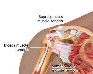 tendon dureros în articulația cotului cum să tratezi cu inflamație articulară ce să facă