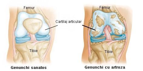 articulația cotului stâng doare ce să facă
