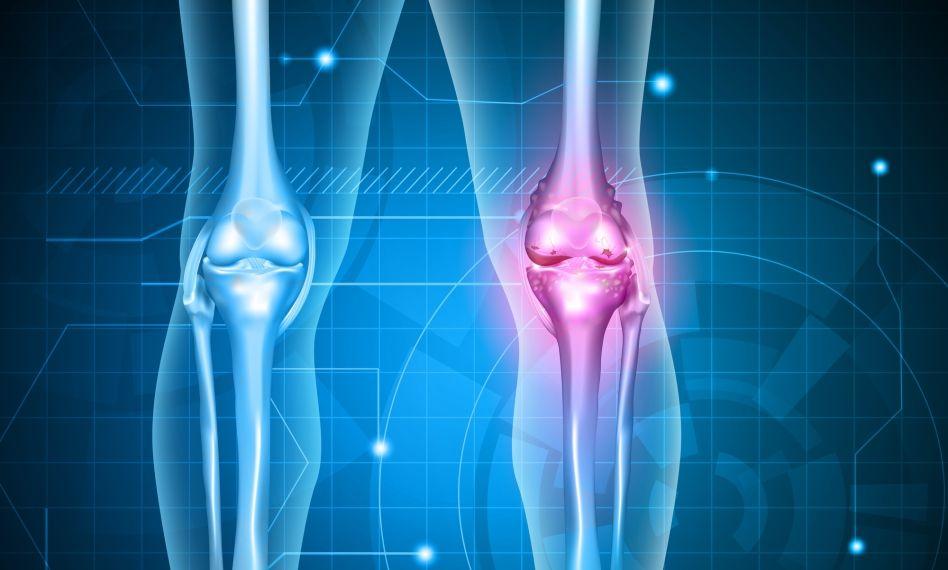 este util mersul pentru artroza genunchiului articulațiile degetelor și degetul mare de la picior