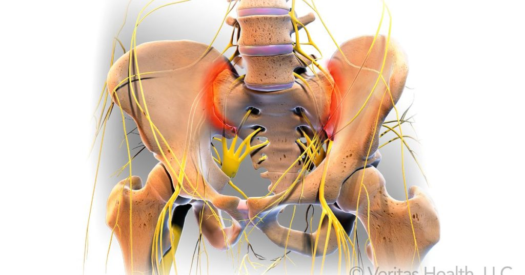 om de durere de șold eliminarea durerii în articulația cotului
