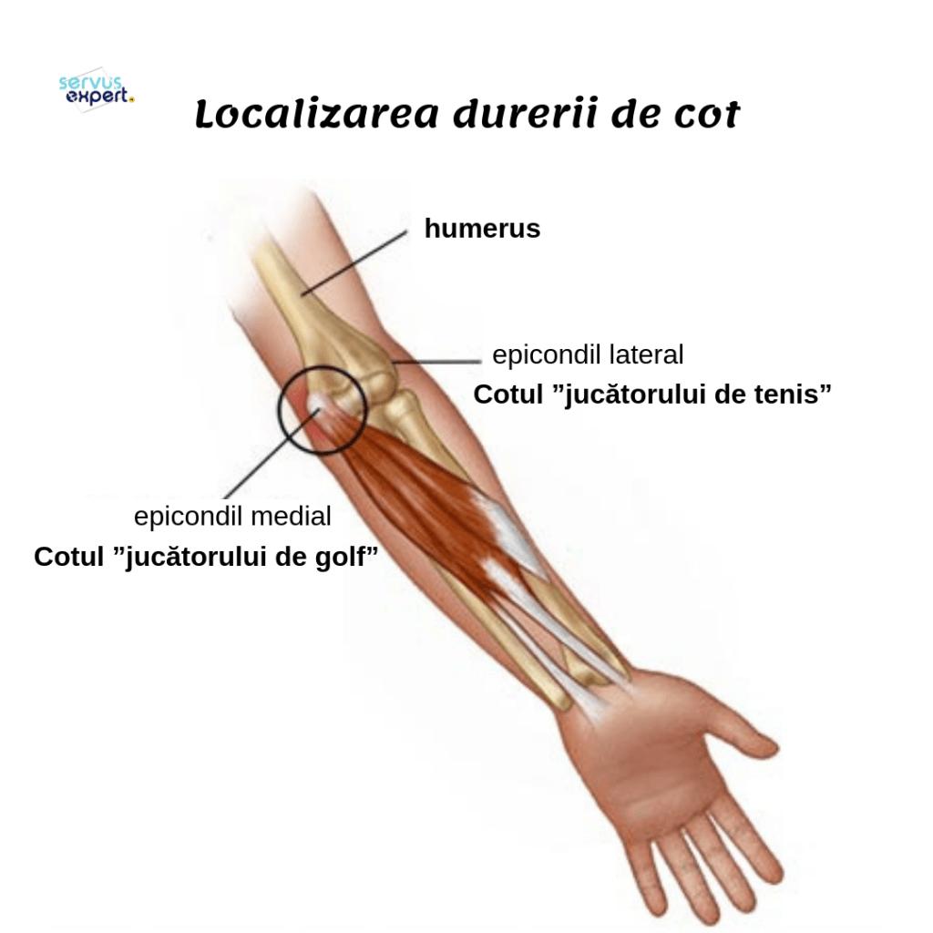 Articulatia cotului – normal vs. patologic, Durere în articulația cotului în timpul extensiei