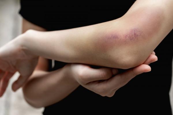 dureri articulare pe vreme caldă articulația genunchiului apare
