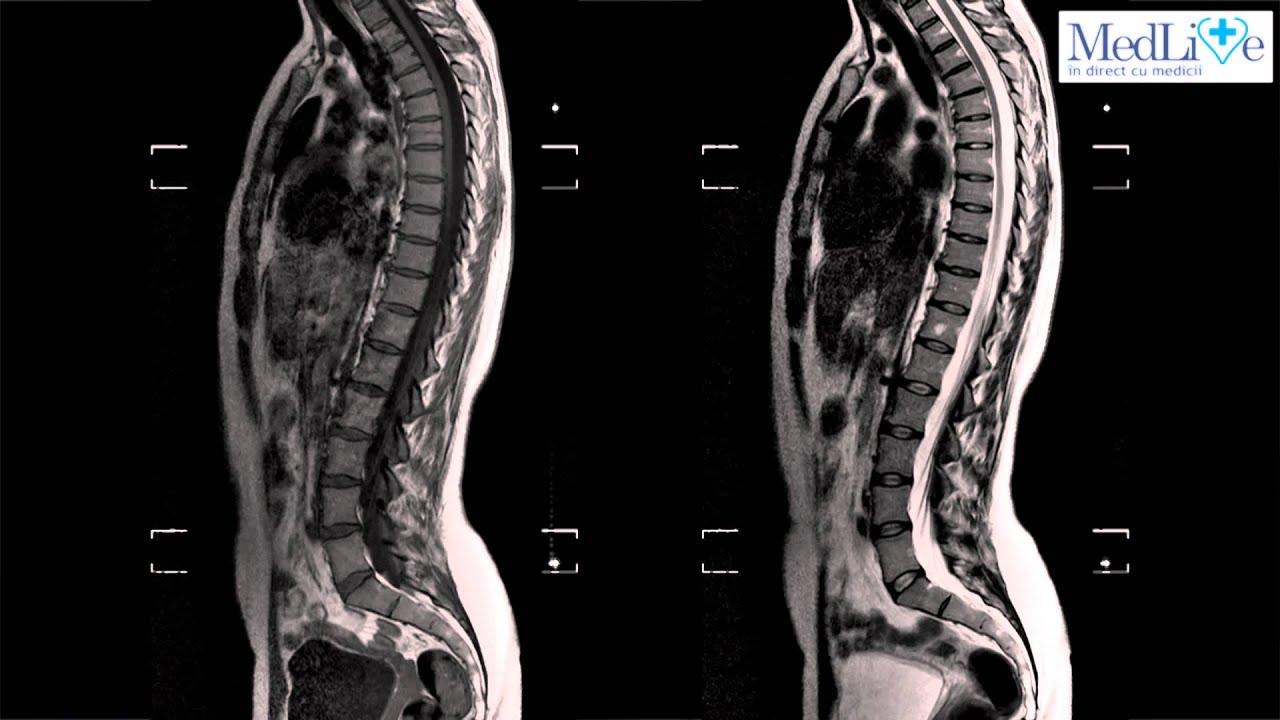 tratament de articulație prin rezonanță magnetică orihiro glucozamină cu condroitină